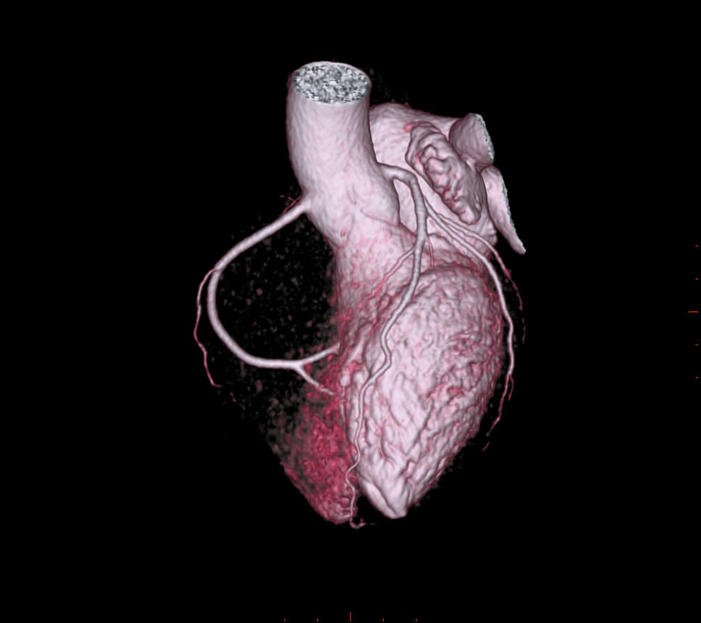 Cardiac CT Scan - Computed Tomography | Blackrock Clinic